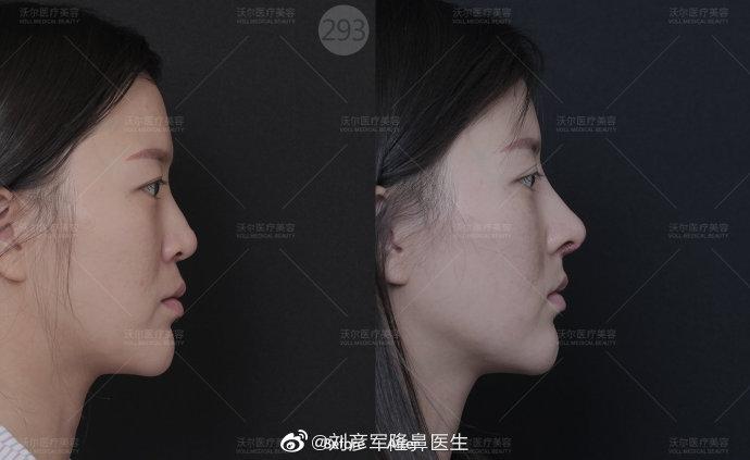 刘彦军鼻综合案例