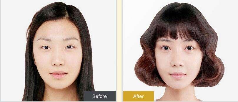 上海九院孙宝珊做双眼皮失败修复手术怎么样?
