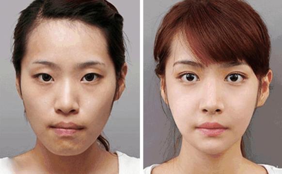 上海公立三甲医院割双眼皮医生