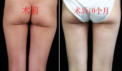李发成大腿吸脂案例