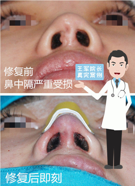 王军鼻修复案例1