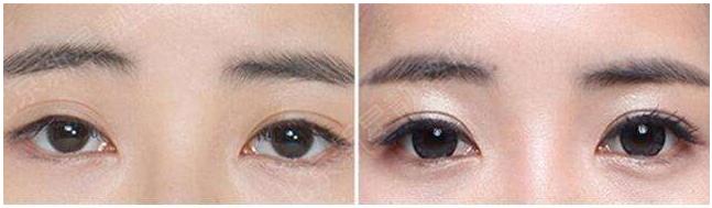 双眼皮修复王世勇和刘风卓那个修复好?