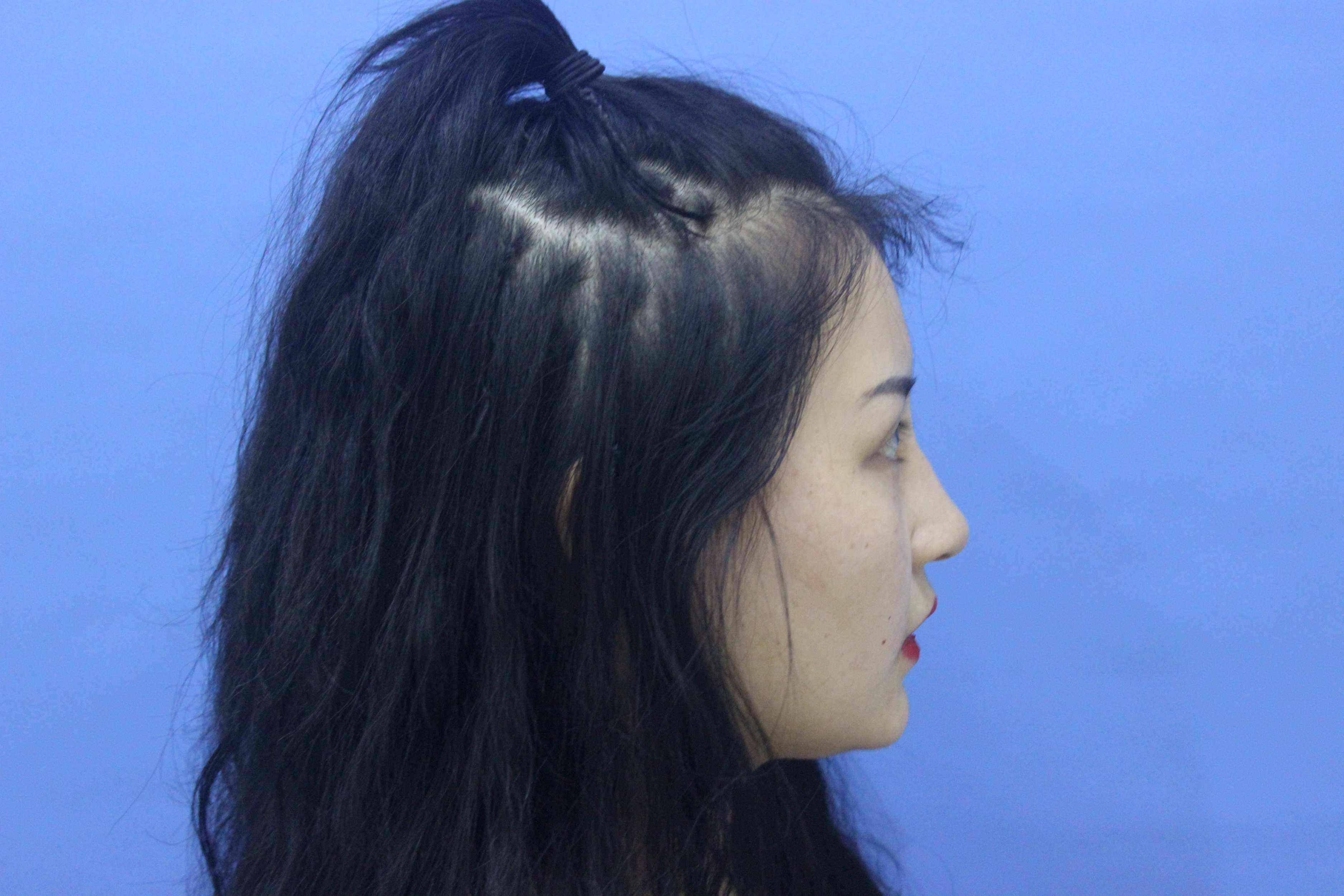 北京三甲医院鼻综合哪个最好?