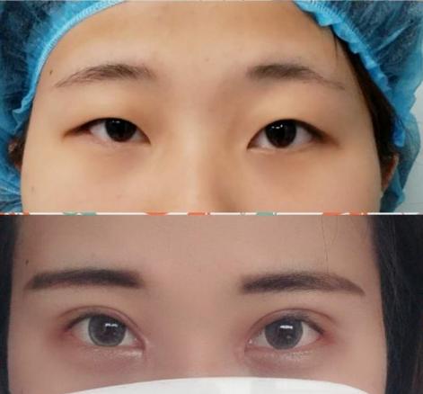 上海三甲医院眼综合哪个医生做的好?