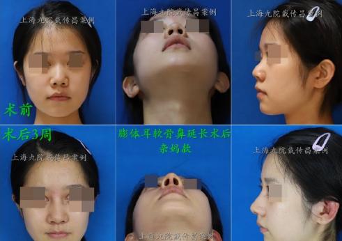 戴传昌鼻修复案例