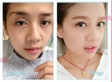 南京哪个医生修复双眼皮最好?