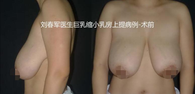 刘春军巨乳缩小案例