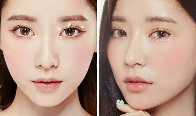 广州三甲医院做韩式双眼皮多少钱