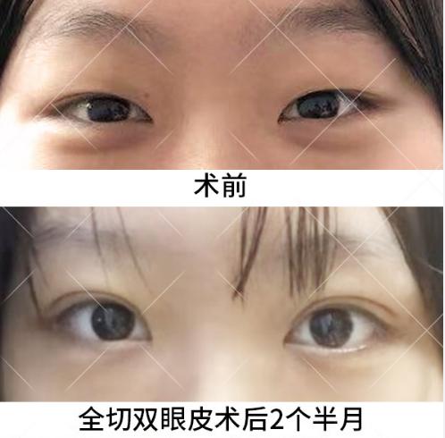 于晓波双眼皮案例