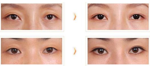 北京专做眼修复的医生都有哪些?