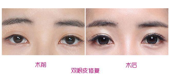 中国眼修复专家刘风卓和王振军哪个更厉害?