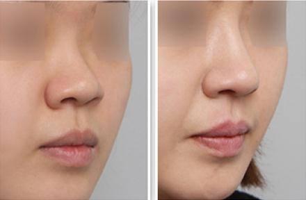 国内鼻综合十大专家都有哪些?