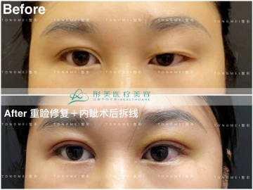 北京刘风卓、白永辉和王世勇谁修复双眼皮最好呢