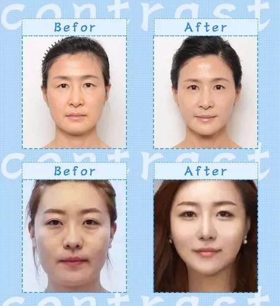 北京哪个医生面部提升修复手术做的好
