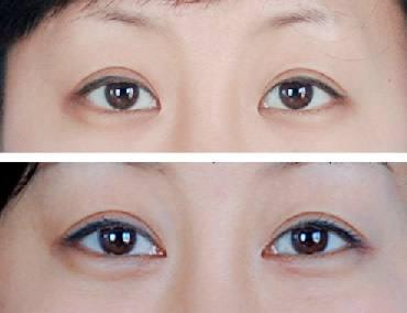 北京高难度内眼角修复专家都有哪些?