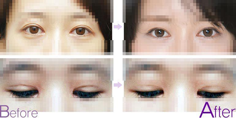 国内双眼皮修复最好的专家:王世勇和郑永生
