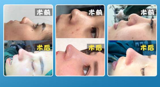 上海肋骨鼻做得比较好的医生