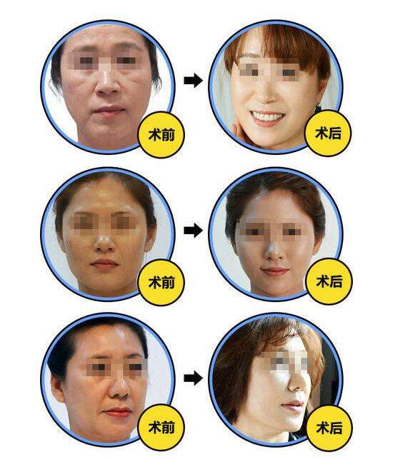 九院做面部提升最好的医生:金云波和李青峰