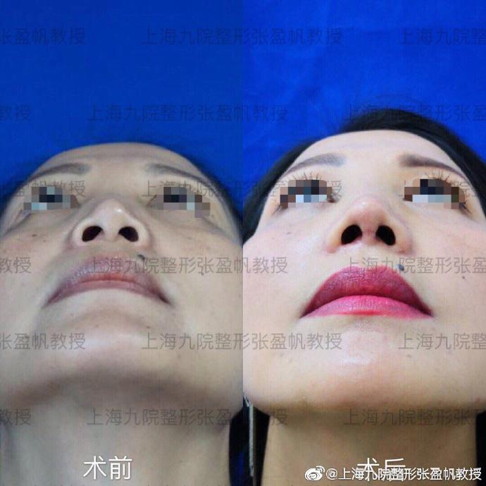 张盈帆鼻修复案例