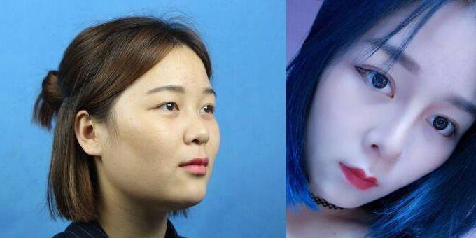祝联鼻修复案例