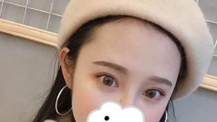 上海九院修复双眼皮最好的专家