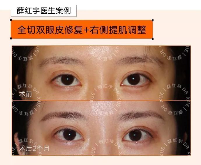 薛红宇双眼皮修复案例