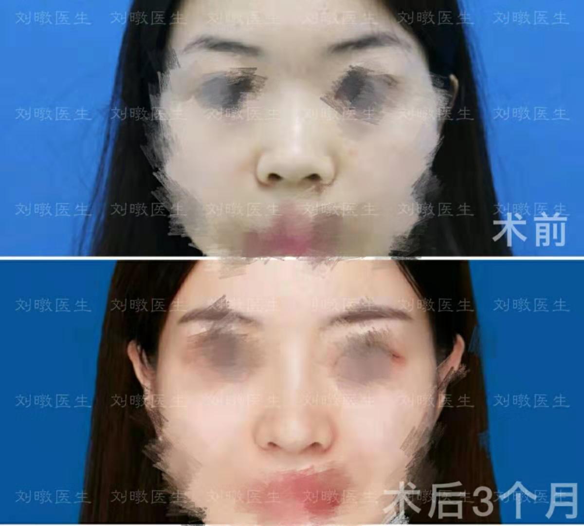 刘暾鼻案例