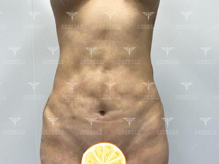 王明利脂肪修复案例