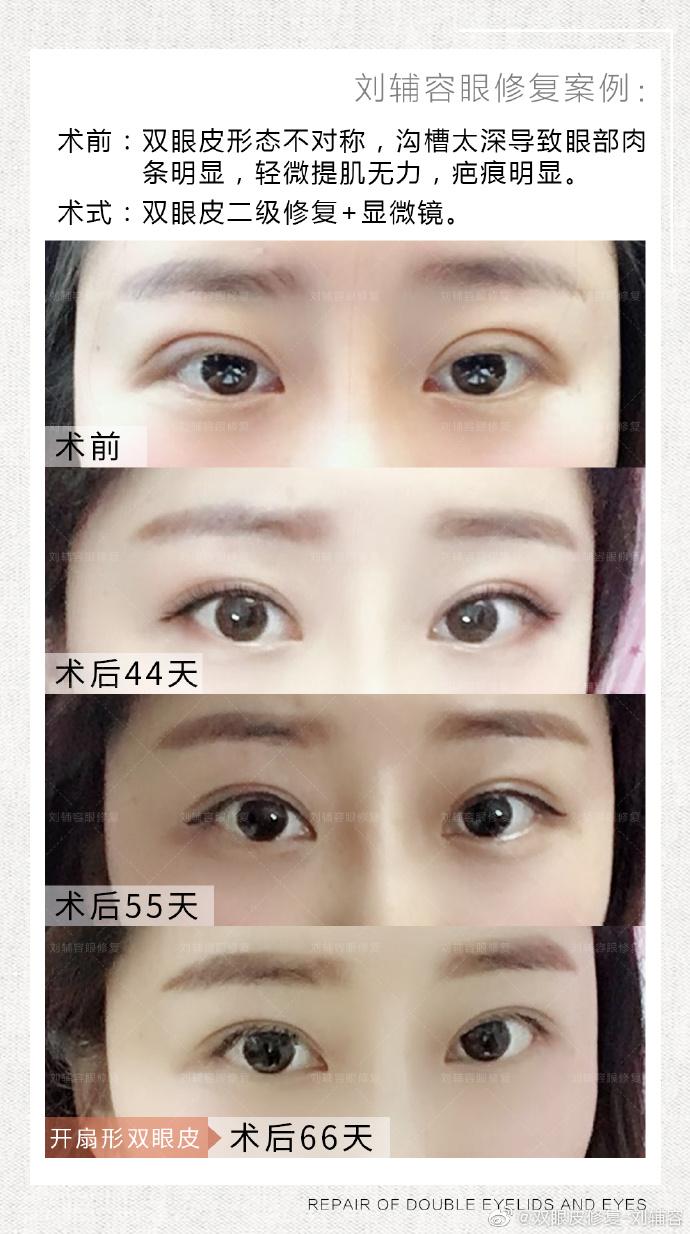 刘辅容眼修复案例