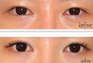 国内双眼皮修复最好的专家是哪个?