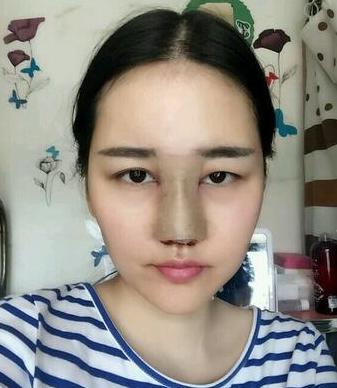 范飞鼻综合案例