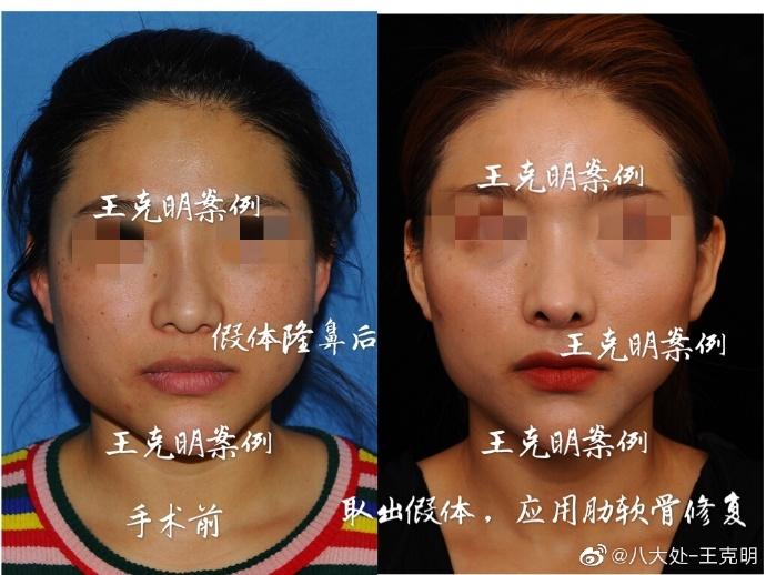 王克明鼻综合案例