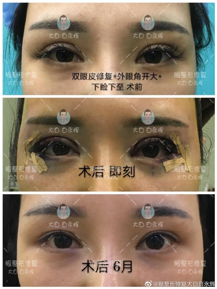 白永辉双眼皮修复案例