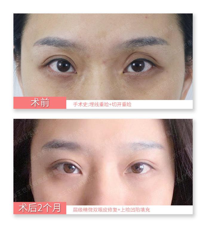 中国十佳眼部整形修复的专家
