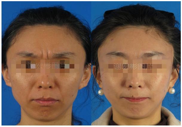 中国最权威的面部提升医生