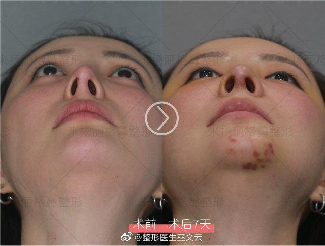 巫文云鼻修复案例