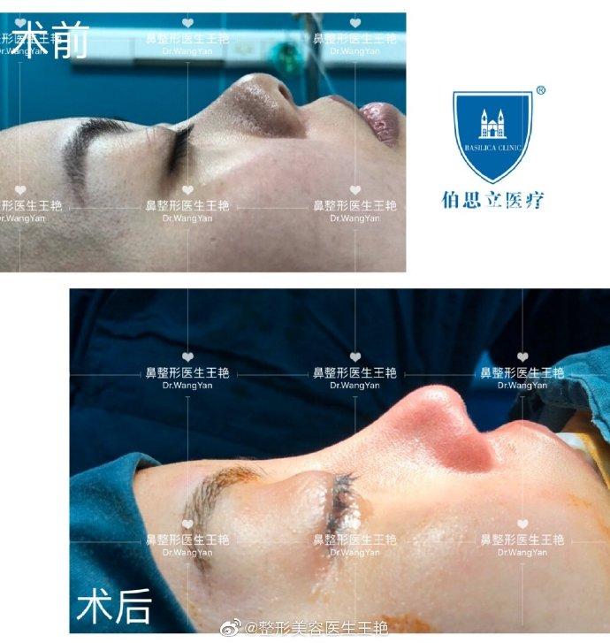王艳鼻修复案例