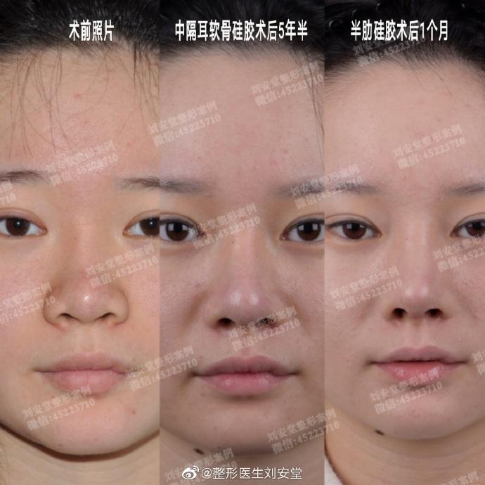 刘安堂鼻整形案例