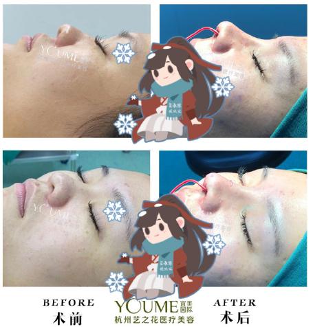 杨海波鼻案例