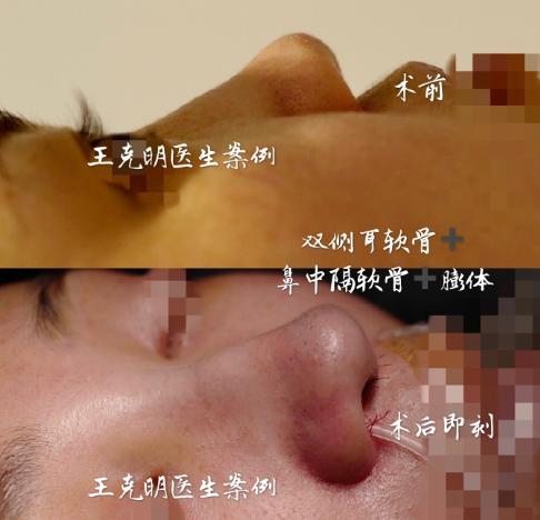 王克明隆鼻案例
