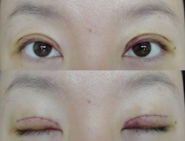 北京三甲医院做双眼皮手术最好的医生