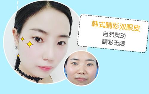 上海九院双眼皮专家排名