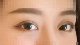武汉做双眼皮最好的医生