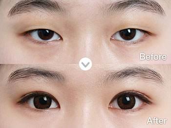 天津双眼皮修复专家是谁?