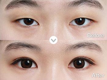 上海九院做双眼皮多少钱?上海九院双眼皮哪个医生比较好?