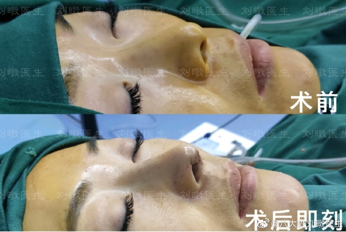 刘暾鼻综合案例
