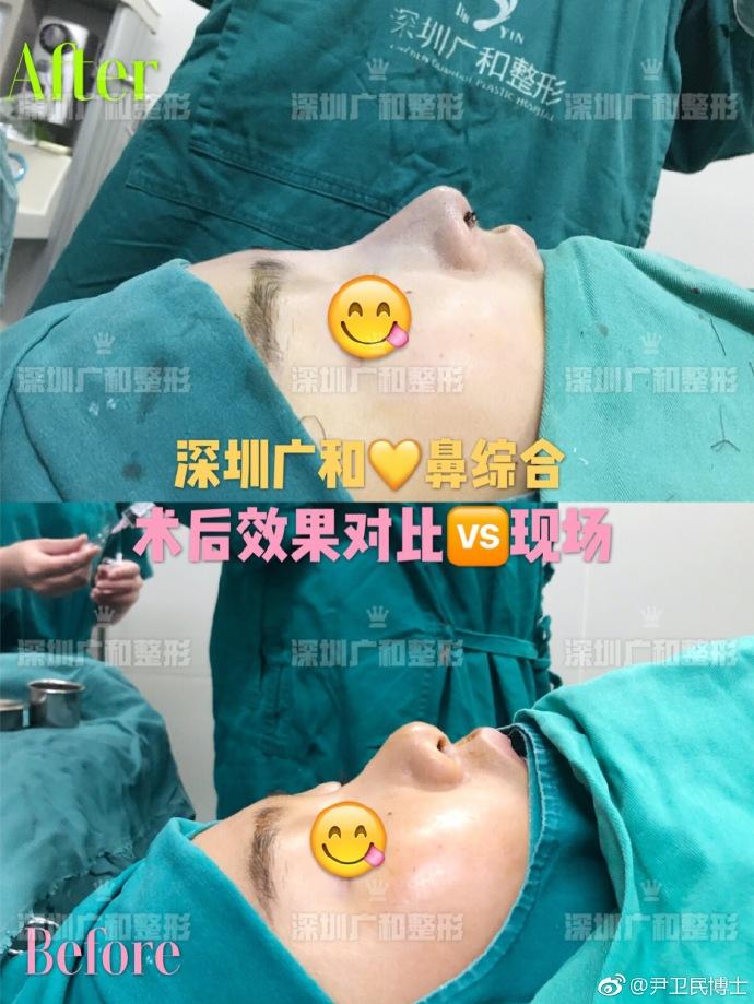 尹卫民鼻综合案例