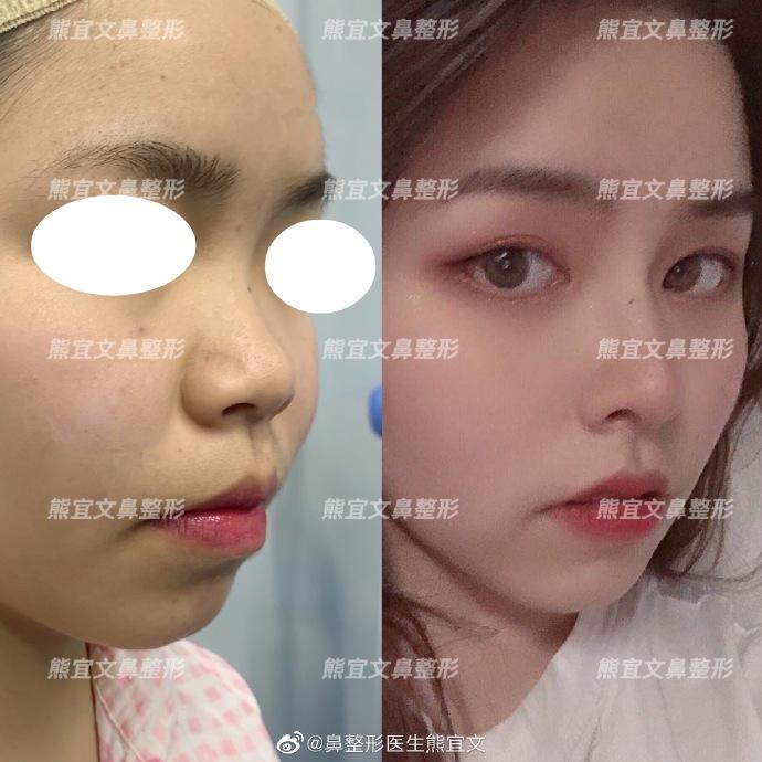 熊宜文鼻综合案例