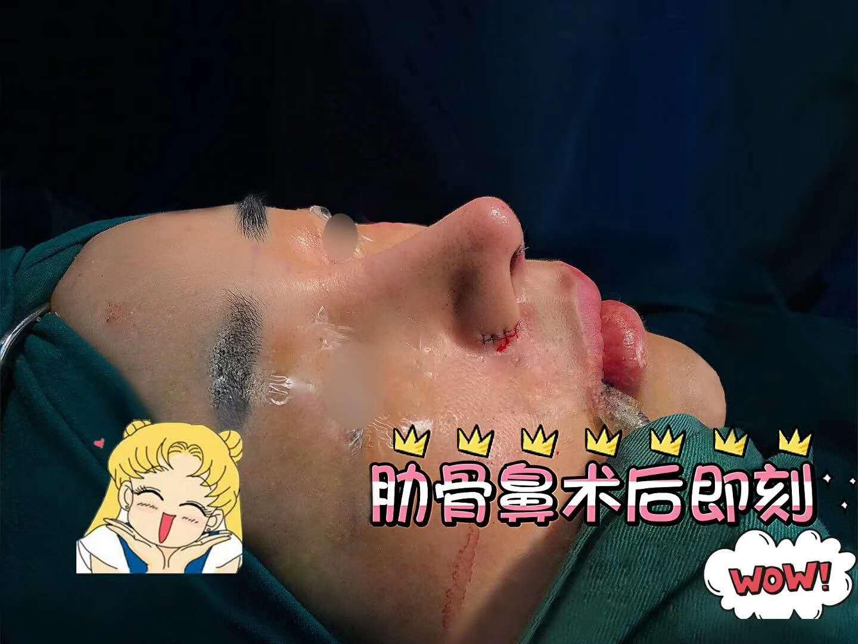 北京隆鼻专家前十名,北京隆鼻医生排行榜