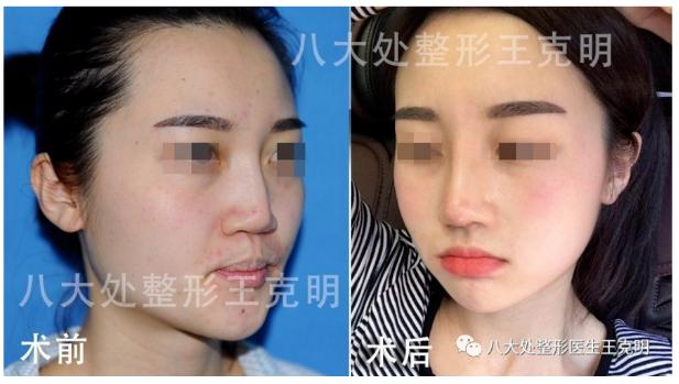 王克明鼻修复案例